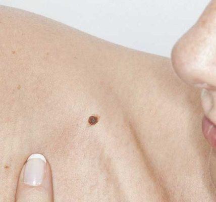 Chirurgiczne lub laserowe usuwanie pieprzyka. Źródło: healthline.com.