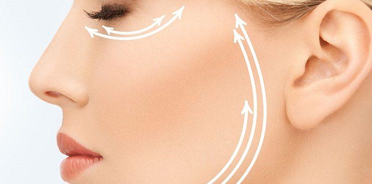 Lifting skóry twarzy (face lifting). Fotografia: myfacemybody.com.