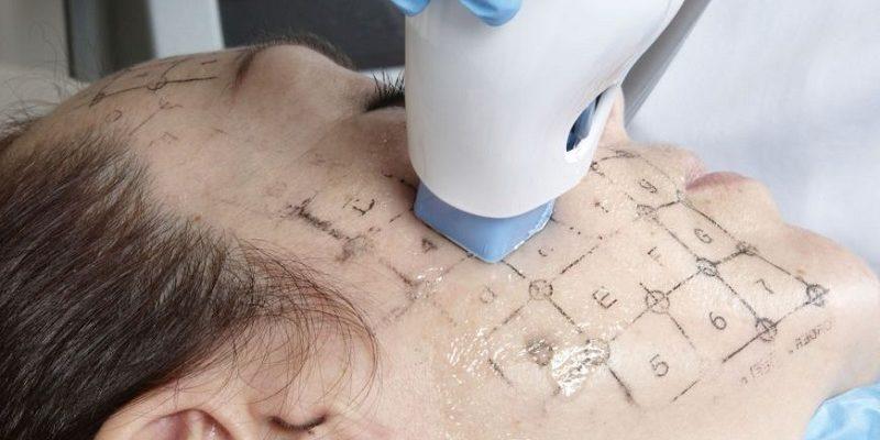 Nowoczesny zabieg Thermage na skórę twarzy. Źródło grafiki: cdn.expatwoman.com.