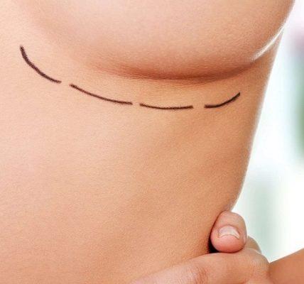 Operacja plastyczna piersi. Fotografia: blogs.uai.com.br.