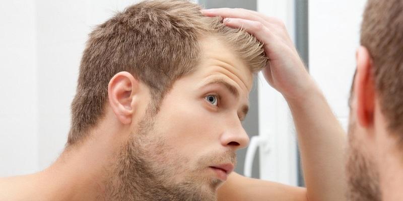 Wypadanie włosów - jak walczyć z łysieniem? Fotografia: uk.askmen.com.