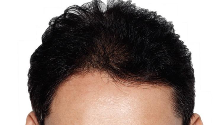 Zabieg transplantacji włosów inwazyjną metodą leczenia łysienia. Fotografia: cdn.expatwoman.com.