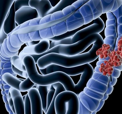 Rak jelita grubego - przyczyny, objawy i rozpoznanie nowotworu. Fotografia: www.medicalnewstoday.com.