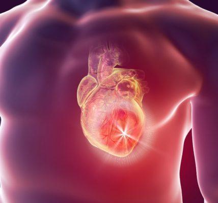 Choroba niedokrwienna serca. Fotografia: www.heart.org.