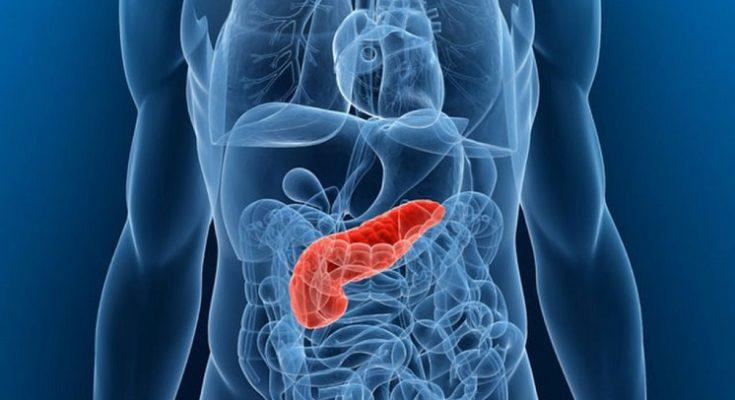 Martwicze zapalenie trzustki - przyczyny, objawy, diagnoza i rokowania. Fotografia: www.geelongmedicalgroup.com.au.