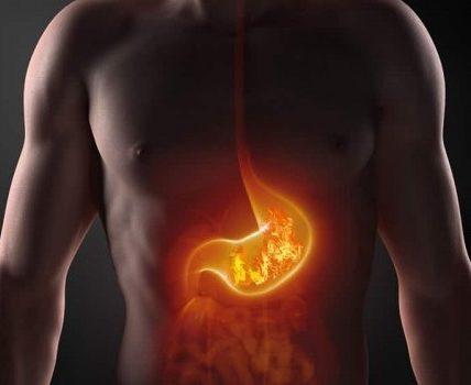 nadkwasota żołądka