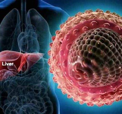 Ostre wirusowe zapalenie wątroby. Fotografia: zovon.com.