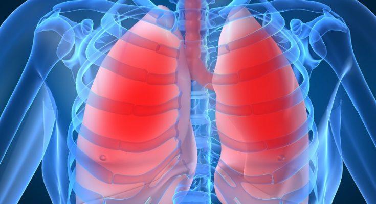 Przyczyny i objawy mukowiscydozy. Fotografia: compendium.com.