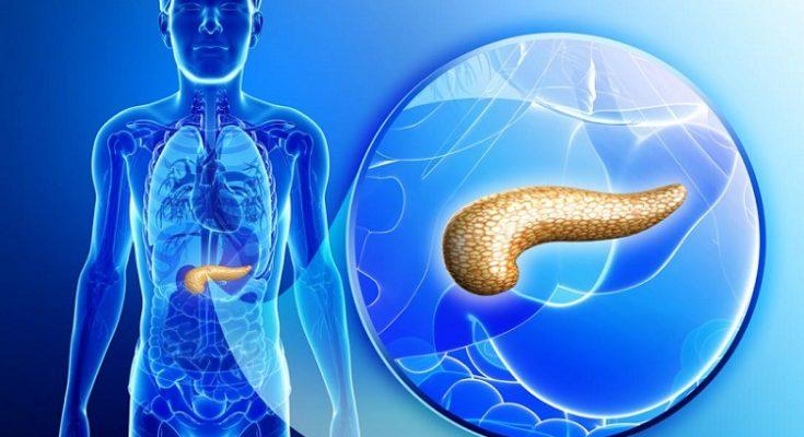 Rak trzustki i objawy oraz rokowania. Fotografia: medicalnewstoday.com.