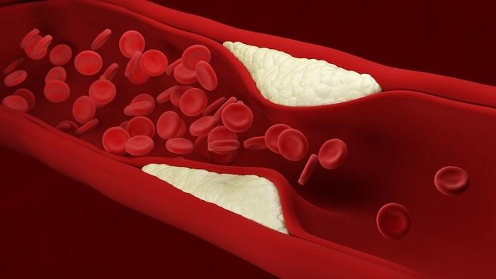 Zmiany miażdżycowe w tętnicy/ Fotografia: www.leafscience.org.